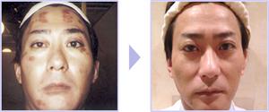 院長自ら最新型フォト+ヤンセンコスメ使用にてシミを改善実証! エステ 豊川市 永久脱毛