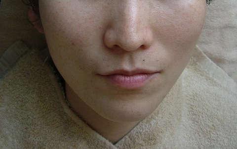 30歳女性(そばかす) エステ しみ たるみ 美容皮膚