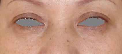 40歳女性、眼ぶくろの脂肪除去 エステ しみ たるみ