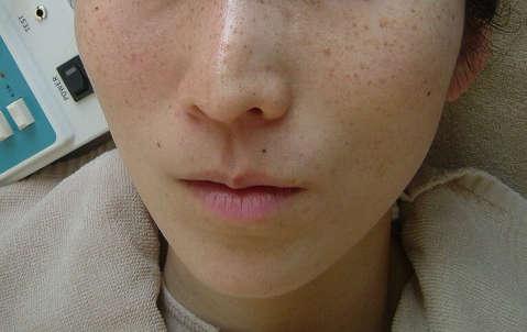 35歳女性(そばかす)  エステ しみ たるみ 美容皮膚
