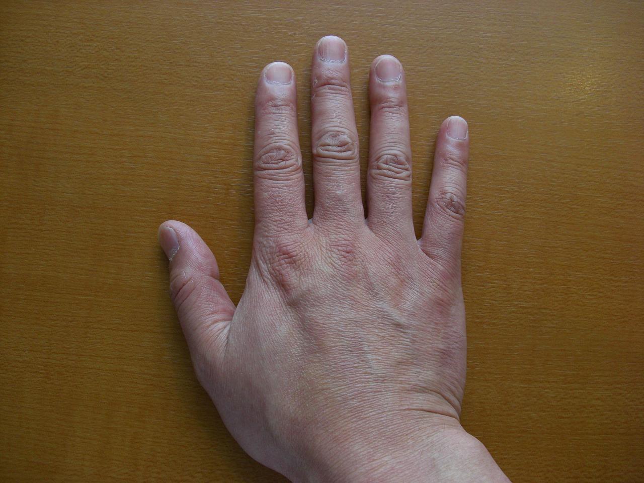 65歳 頬の毛細血管拡張