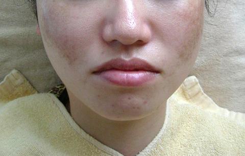 29歳女性、肝斑(両頬に広がる薄いシミ) エステ しみ たるみ 美容皮膚 レーザー
