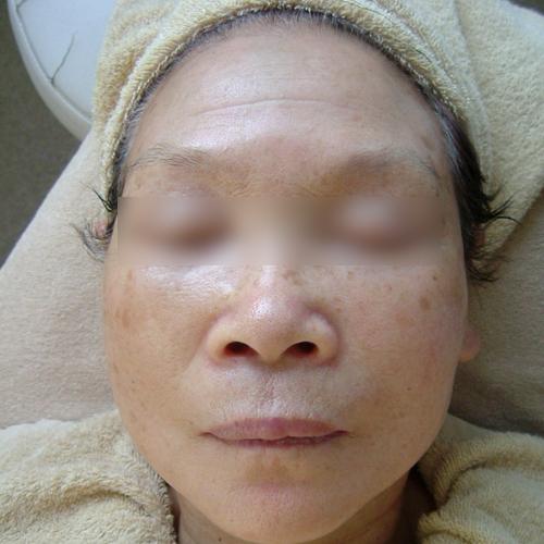 76歳女性(紫外線による老人性色素班) エステ しみ たるみ 美容皮膚