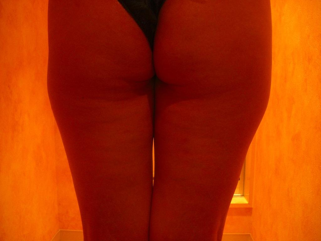 40歳女性(太腿の部分痩身) エステ しみ たるみ