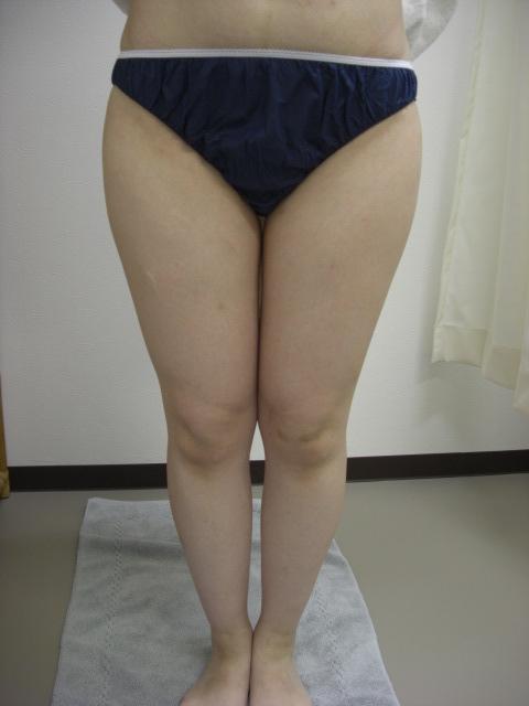 30歳大腿部キャビテーション痩身