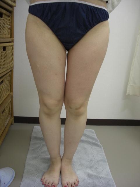 40歳女性(部分痩身) エステ しみ たるみ