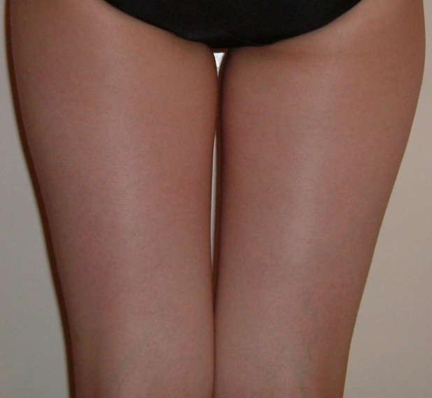 29歳女性(下半身の部分痩身) エステ しみ たるみ