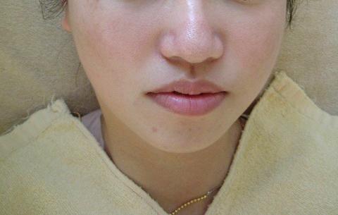 29歳女性、肝斑(両頬に広がる薄いシミ) エステ しみ たるみ 美容皮膚